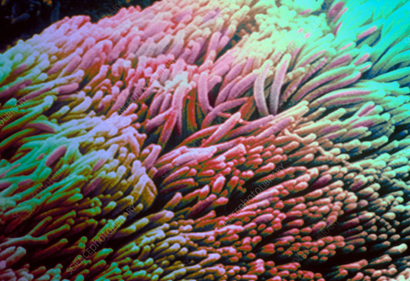 Microscopic Facts: Hairy Cells